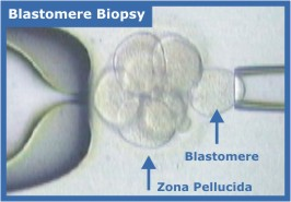 Laser Assisted Embryo Biopsy (Blastomere biopsy)