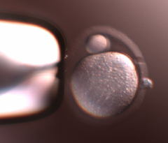 In Vitro Fertilization (IVF)